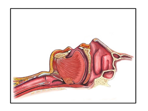 An illustration of an airway obstruction leading to sleep apnea