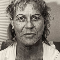 Rusty, One day after Bandages Removed from Facelift, Albuquerque, NM, 2013 by Jim Holbrook